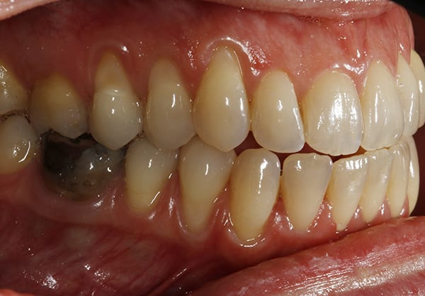 Before right periodoncia