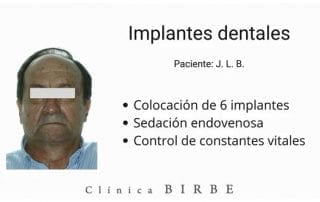 Paciente para implantes dentales