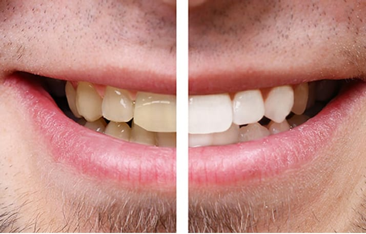 Estética dental - Blanqueamiento dental