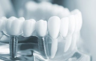 Implantes dentales en Barcelona